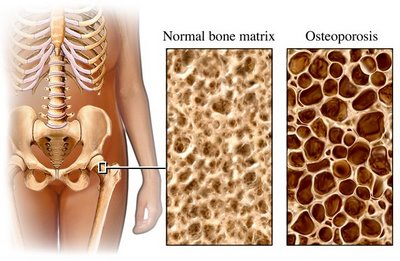 http://myhealing.files.wordpress.com/2008/04/osteoporosis.jpg?w=400&h=261